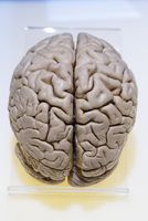 Plastinated Specimen of Human Brain