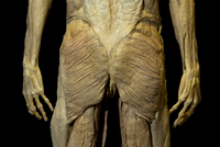 Plastinated Specimen of Human Buttocks
