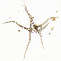藻類 20026004908| 写真素材・ストックフォト・画像・イラスト素材|アマナイメージズ