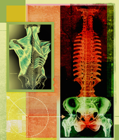 X-ray of inflamed spine and pelvis and anatomical drawing