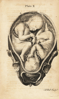Twins in utero at the start of labour.