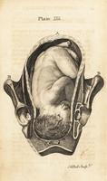 Foetus head sunk down in the pelvis.