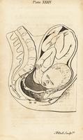 Foetus in breech birth position.