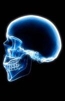 Skeletal x-ray-86