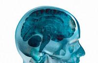 Brain sliced-54