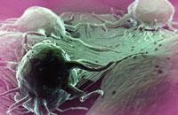 Cancer cells-5