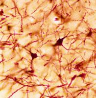 大脳神経細胞
