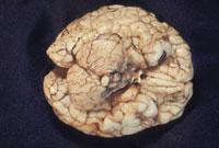 脳(2才) 23018002564| 写真素材・ストックフォト・画像・イラスト素材|アマナイメージズ