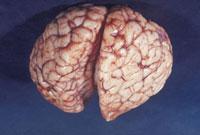 脳(生後1ヵ月) 23018002568| 写真素材・ストックフォト・画像・イラスト素材|アマナイメージズ