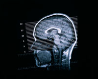 頭部MRIの画面位置ぎめの画像