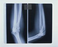 レントゲン写真 右手関節