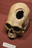 インカ時代の脳外科手術