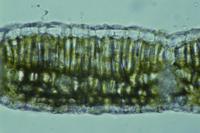 カエデ(モミジ)の仲間の夏葉の断面 顕微鏡倍率×400 32217000223| 写真素材・ストックフォト・画像・イラスト素材|アマナイメージズ