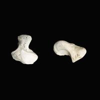 ヒトの手首の骨 左; 有鉤骨 内側 右:舟状骨の手掌 表面