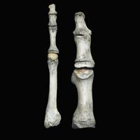 左: 第2趾の中足骨と指骨 右: 第1趾の中足骨と指骨  二次骨化中心 3歳から18歳