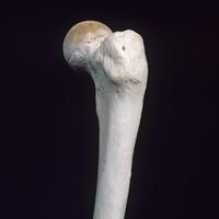 ヒトの大腿近位部 側面