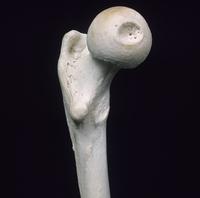 ヒトの大腿近位部 内側