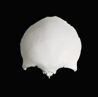 ヒトの頭蓋骨前頭骨外面 前面から