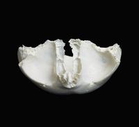 ヒトの頭蓋骨 前頭骨 下部から