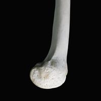 ヒトの下肢骨 大腿遠位 内側より