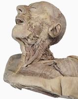 ヒトの顔と首の表面的な解剖 右下から