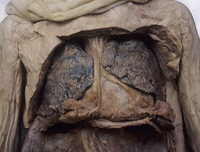 ヒトの肺、心膜、胸膜