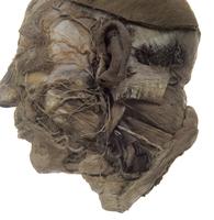ヒトの顔の解剖 左耳下腺と上頸部