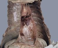 ヒトの心膜の後部 心臓を切除