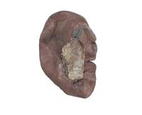 ヒトの脾臓の表面