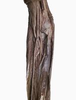 ヒトの右肘窩と前腕の解剖