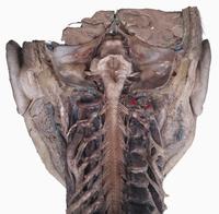 ヒトの脳幹と脊髄上部の解剖 背部から