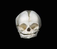 新生児の頭蓋骨