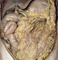 ヒトの上腹部の解剖 正面から 大網、小腸、盲腸、横行結腸、肝臓、胆嚢