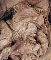 ヒトの胃の解剖の膵臓、上腸間膜動脈、結腸動脈、横行結腸、肝臓