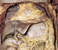 ヒトの上腹部の解剖 正面から 左右の肺、心膜脂肪、肝臓、胃、横行結腸、胆嚢