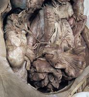 ヒトの回結腸動脈と盲腸 正面から 32268000410| 写真素材・ストックフォト・画像・イラスト素材|アマナイメージズ