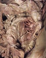 ヒトの下腸間膜静脈とその周辺の解剖 胃と横行結腸切除