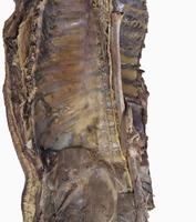ヒトの胸管の右側  胸部大動脈 32268000432| 写真素材・ストックフォト・画像・イラスト素材|アマナイメージズ