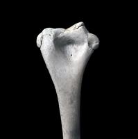 ヒトの上肢骨 右上腕骨遠位 二次骨化中心 6歳から20歳 32268000445| 写真素材・ストックフォト・画像・イラスト素材|アマナイメージズ