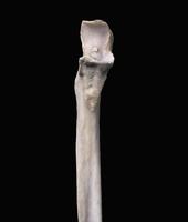 ヒトの上肢骨 右尺骨近位端 正面から