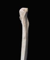ヒトの上肢骨 右尺骨近位端 背面から