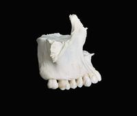 ヒトの右上顎骨 側面 正面から