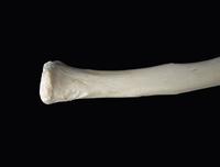 ヒトの上肢骨 鎖骨の胸骨端の二次骨化中心