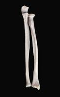 ヒトの上肢骨 右橈骨と尺骨の関節部 正面から