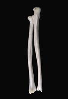 ヒトの上肢骨 右橈骨と尺骨の関節部 背面から
