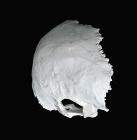 ヒトの後頭骨 外側の表面 右下から