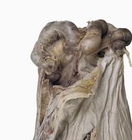 ヒトのS状結腸の一部と結腸間膜