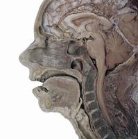 ヒトの頭部の矢状断面 鼻中隔のこしている