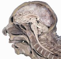 ヒトの頭部の矢状断面 鼻中隔を切除