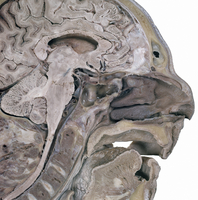 ヒトの頭部の矢状断面 左鼻腔隔を切除